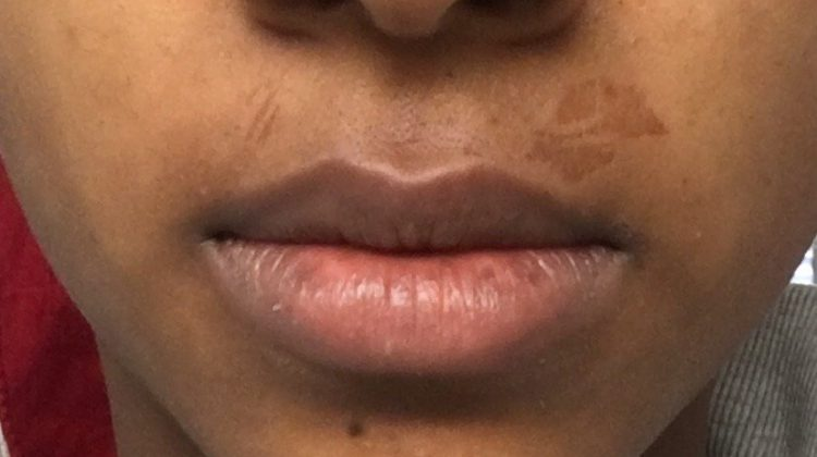 How to Treat Wax Burns on Upper Lip